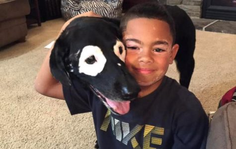 Boy With Skin Disorder Finds Best Friend with The Same Condition