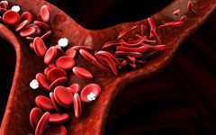 Possible Cure for Sickle Cell Anemia?