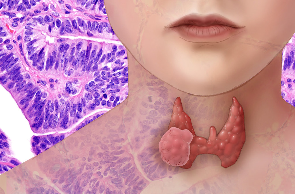 While thyroid cancer is very treatable with surgery and other therapies, it remains the fastest growing cancer in the United States.